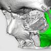 Пострадавшему в аварии байкеру восстановят лицо при помощи 3D-печати