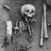 Во Франции нашли самого старого «дауна»
