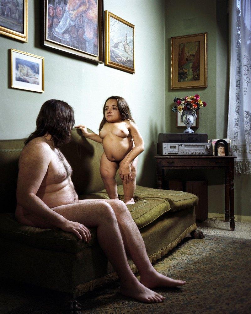 Фотопроект: Сексуальность людей с ограниченными возможностями. Изображение № 1.