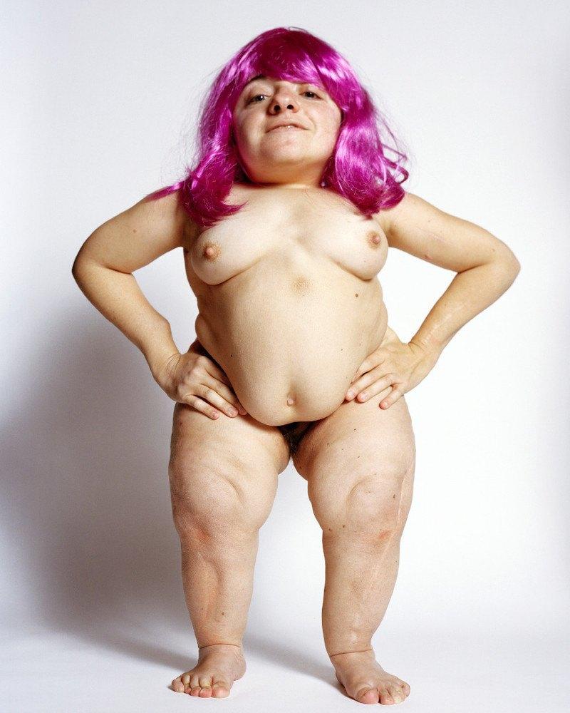 Фотопроект: Сексуальность людей с ограниченными возможностями. Изображение № 14.