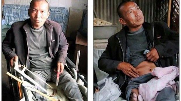 Китайский бедняк пытался самостоятельно ампутировать себе ногу ножовкой. Изображение № 1.
