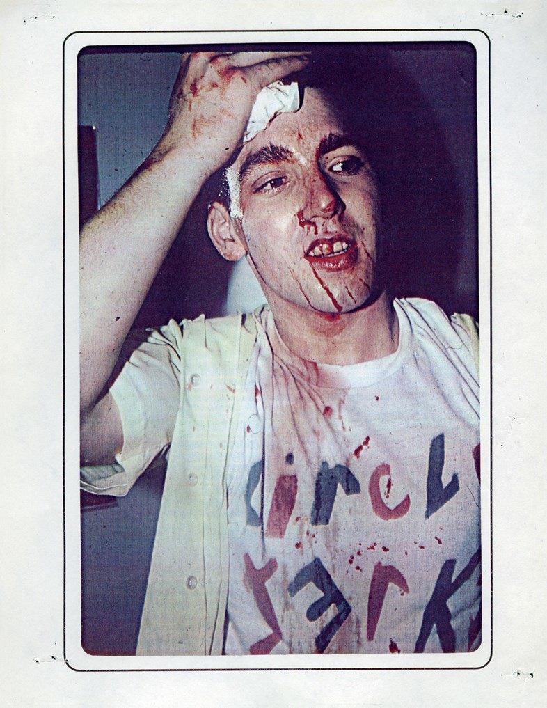 Кровь, пот и кожа: Зарождение лос-анджелесского хардкора в фанзине FER-YOUz. Изображение № 6.