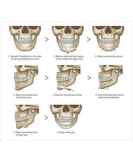 Корейские пластические хирурги построили колонны из костей пациентов. Изображение № 2.