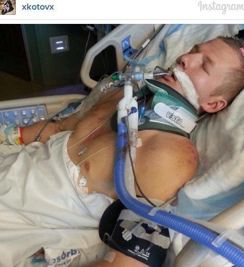 Мотоциклист, врезавшийся в авто на скорости 230 км/ч, выложил видео своей аварии. Изображение № 13.