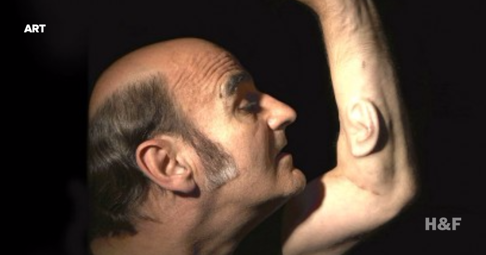 Australian artist grows third ear on arm