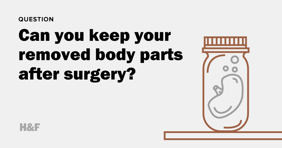 Can you keep your removed body parts after surgery?