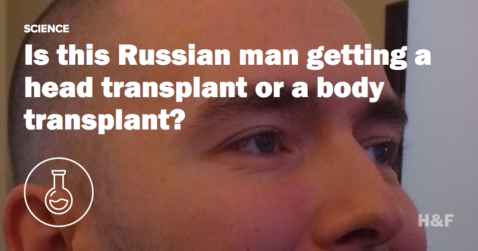 Is this Russian man getting a head transplant or a body transplant?