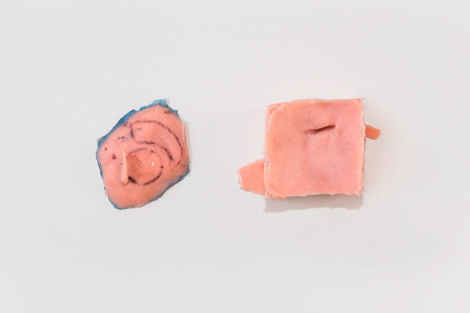 Silicone model of Vasquez's missing ear location, made using an alginate cast. Image 7.