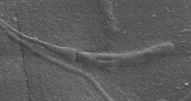 Oldest worm sperm ever found in Antarctica. Image 1.