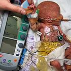 Врачи киборгизировали недоношенную девочку