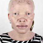 Альбинизм Питера Хьюго