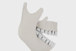 Человеку распечатали челюсть на 3D-принтере