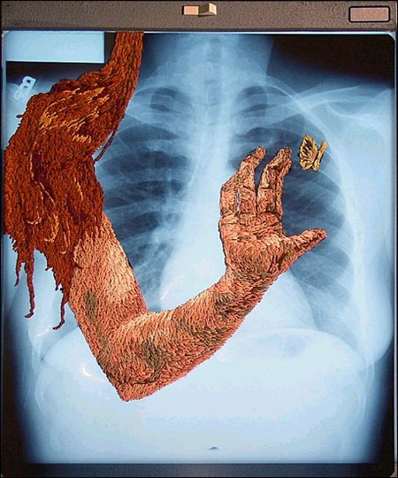 Рентгеновские снимки по-новому. Изображение № 5.