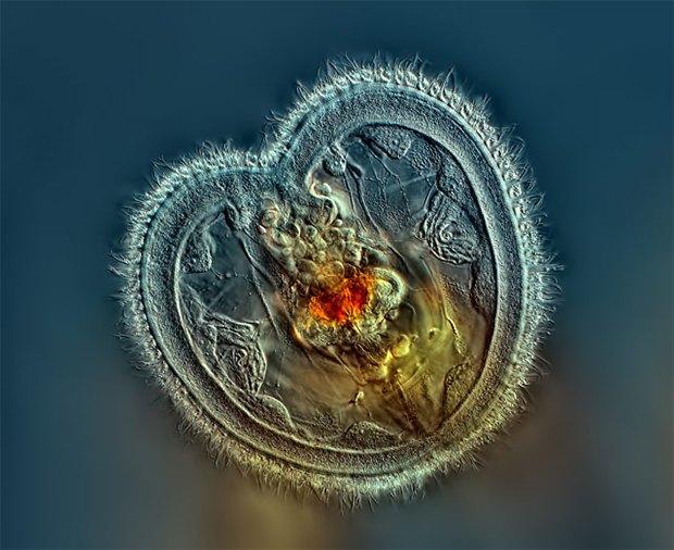 Что не видит глаз: Лучшие микроскопические фотографии этого года. Изображение № 1.
