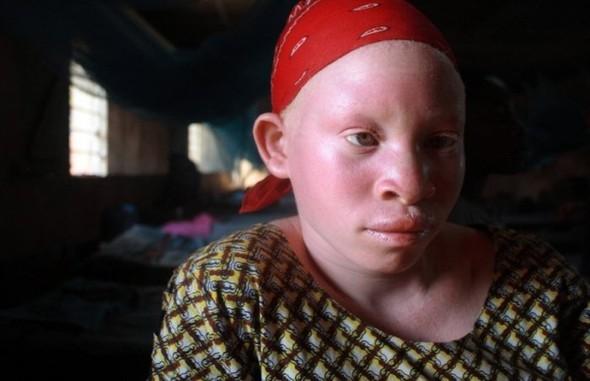 Убийство африканских альбиносов. Изображение № 5.