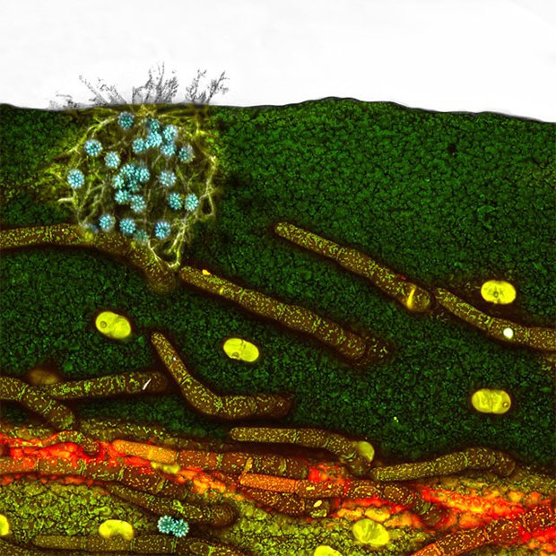 Что не видит глаз: Лучшие микроскопические фотографии этого года. Изображение № 10.