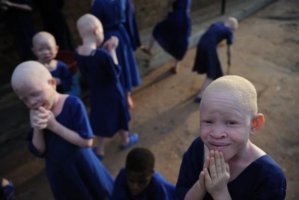Убийство африканских альбиносов. Изображение № 11.