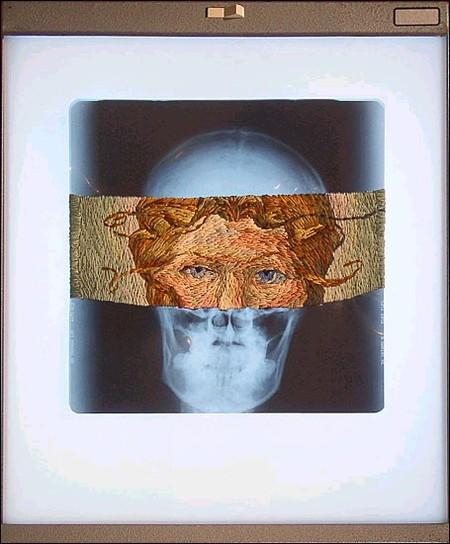 Рентгеновские снимки по-новому. Изображение № 17.