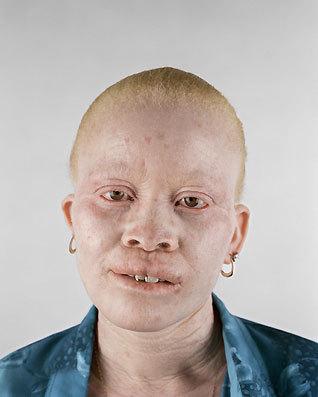 Альбинизм Питера Хьюго. Изображение № 1.