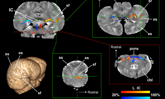 Нейробиологи получили первое изображение мозга дельфина. Изображение № 1.