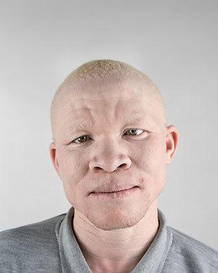 Альбинизм Питера Хьюго. Изображение № 11.
