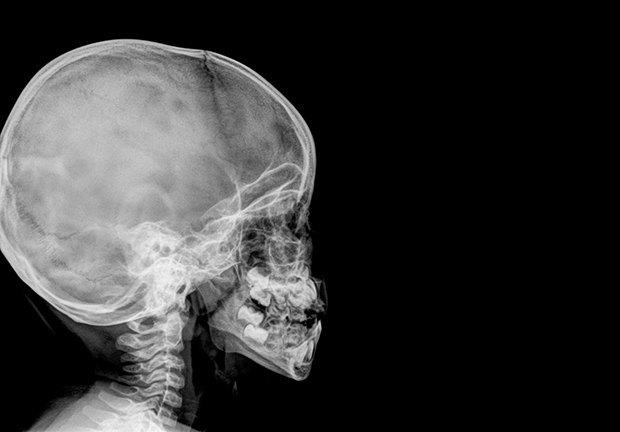 За логику и творчество отвечают разные полушария мозга?. Изображение № 3.