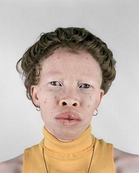 Убийство африканских альбиносов. Изображение № 23.