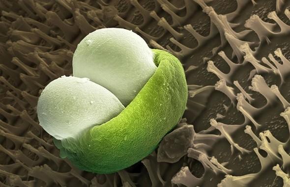 Микроскоп-2: Пыльца. Изображение № 9.