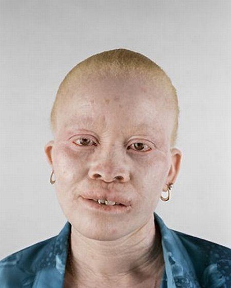Убийство африканских альбиносов. Изображение № 25.