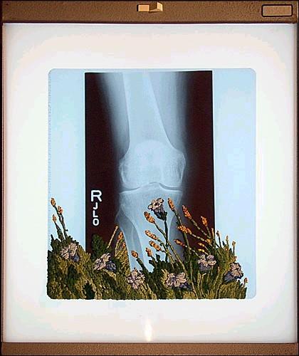 Рентгеновские снимки по-новому. Изображение № 12.