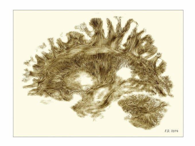 Человеческий мозг. Изображение № 13.