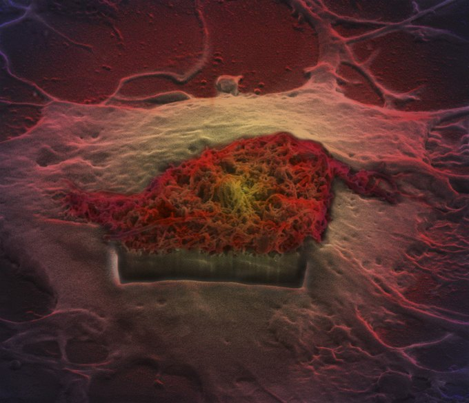 Клетки мозга. Изображение № 11.