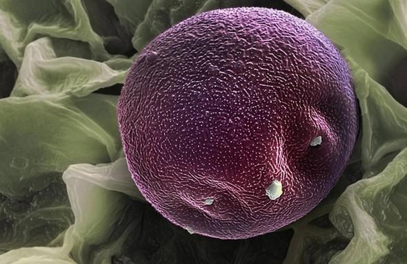 Микроскоп-2: Пыльца. Изображение № 7.