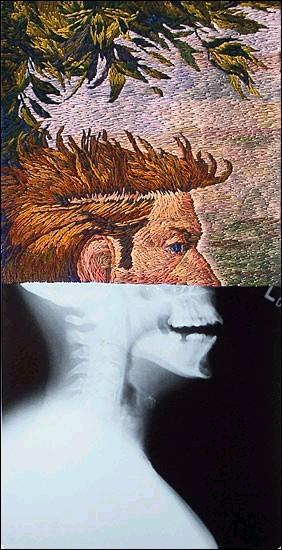 Рентгеновские снимки по-новому. Изображение № 11.