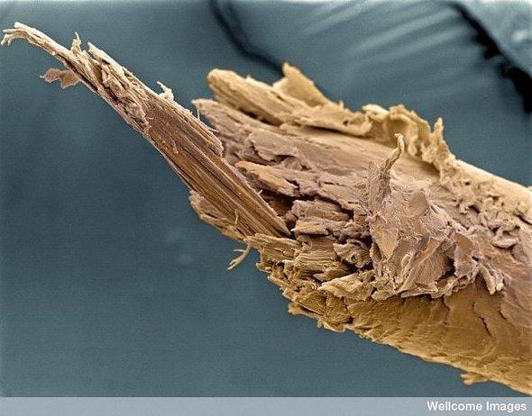 МегаМакро изнутри человека. Изображение № 2.