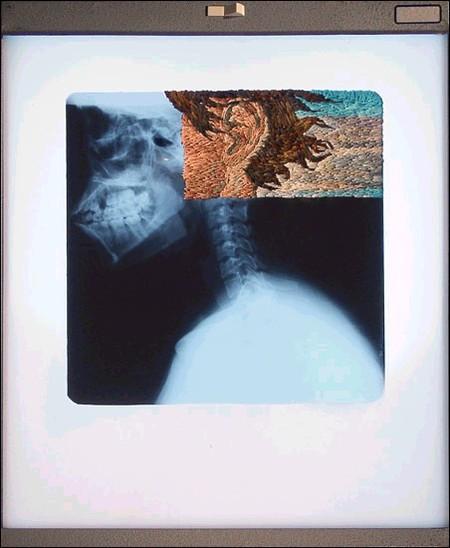 Рентгеновские снимки по-новому. Изображение № 15.