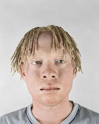 Альбинизм Питера Хьюго. Изображение № 2.