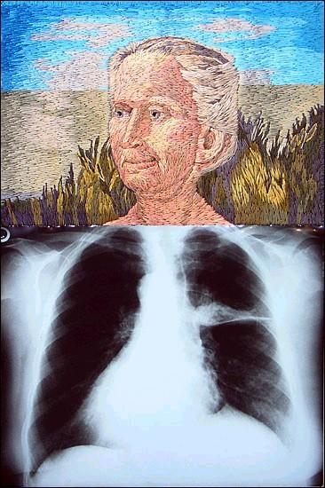 Рентгеновские снимки по-новому. Изображение № 9.