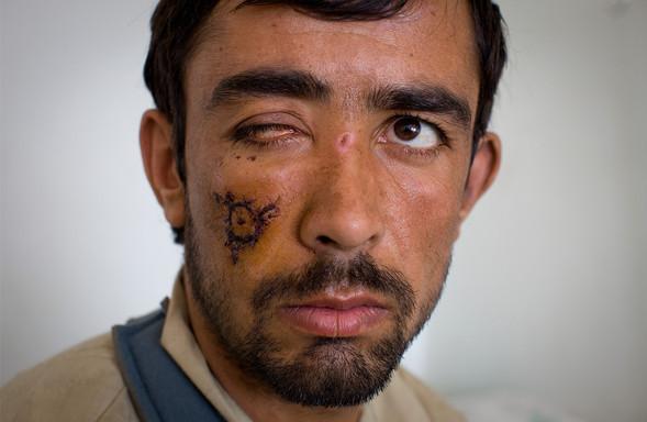 Афганистан. Военная фотография. Изображение № 137.