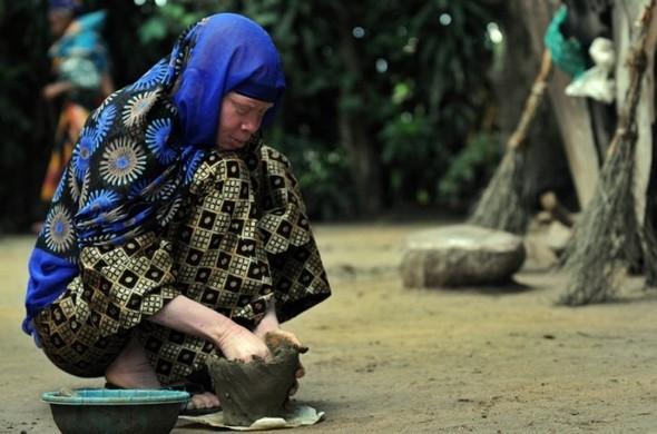 Убийство африканских альбиносов. Изображение № 13.