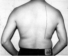 Линия длиной в30см, вытатуированнаянаспине человека завознаграждение, 2008.. Изображение № 27.