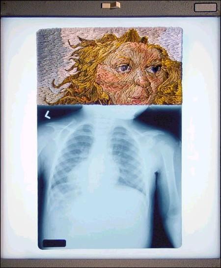 Рентгеновские снимки по-новому. Изображение № 13.