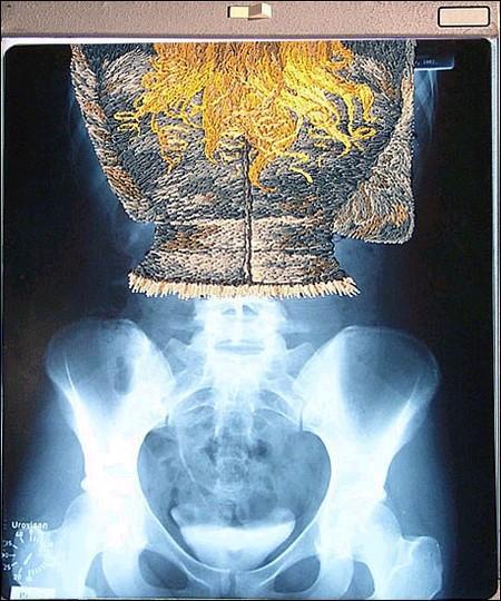 Рентгеновские снимки по-новому. Изображение № 10.