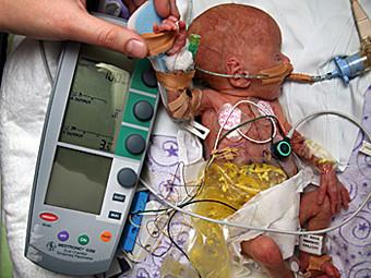 Врачи киборгизировали недоношенную девочку. Изображение № 1.