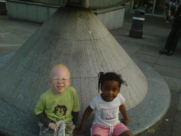 Убийство африканских альбиносов. Изображение № 10.