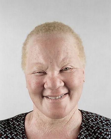 Убийство африканских альбиносов. Изображение № 19.