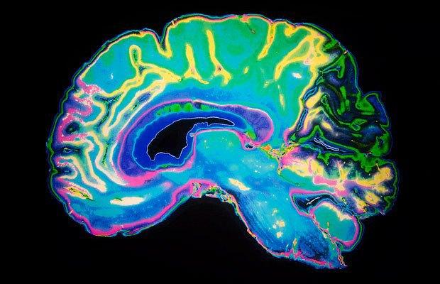 Почему я не хочу ничего знать о мозге (иногда). Изображение № 2.