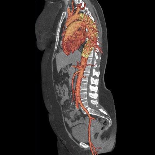 GE представила революционный томограф. Изображение № 5.