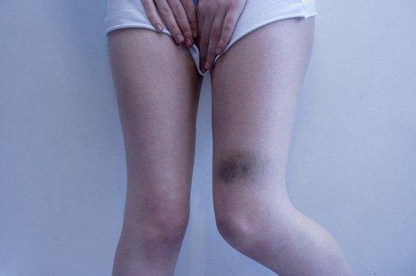 Legs lov. Изображение № 19.