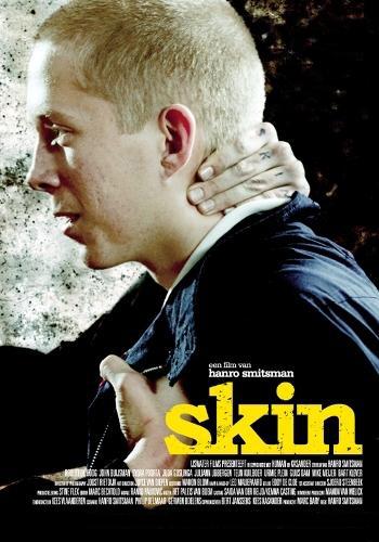 Skin. Изображение № 1.